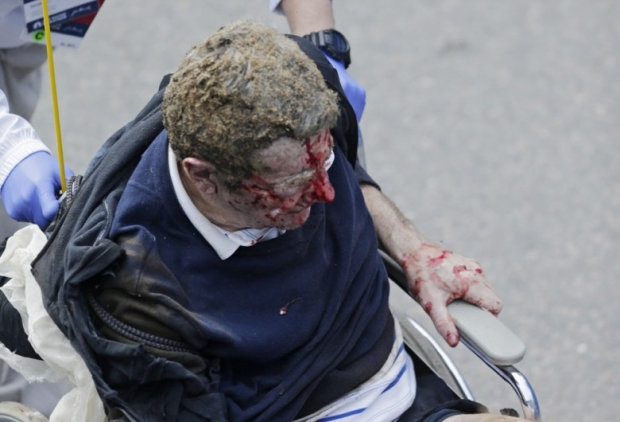 Boston Marathon Bombing In Pictures 5
