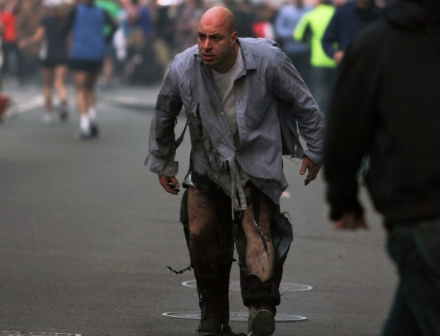 Photos, Boston Marathon Attack Injuries 1