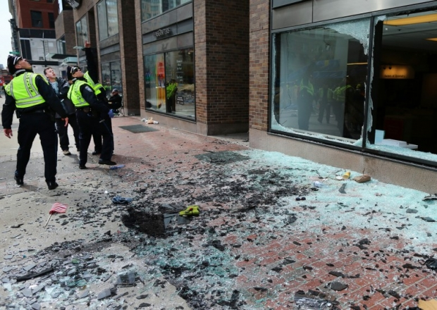 Photos, Boston Marathon Attack Injuries 12