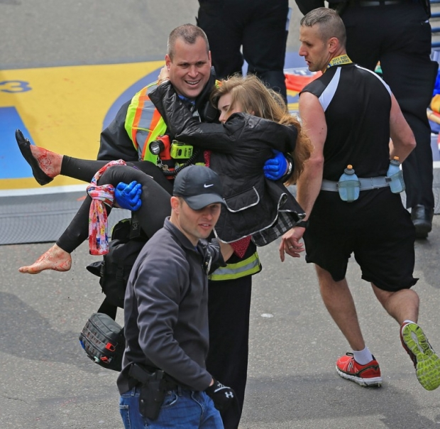 Photos, Boston Marathon Attack Injuries 13