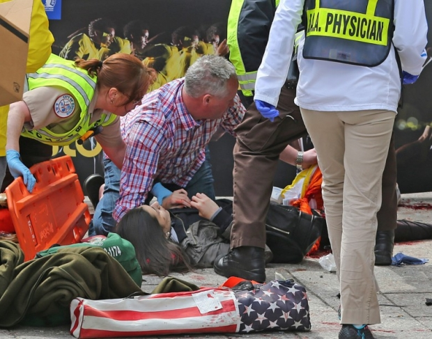 Photos, Boston Marathon Attack Injuries 6